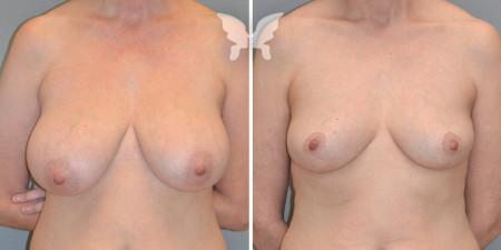 Результаты мастопексии