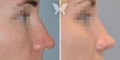 Фото до и после ринопластики