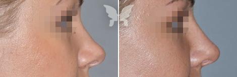 Результаты ринопластики у девушки - фото до и после