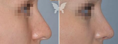 Результаты ринопластики у женщин - фото до и после